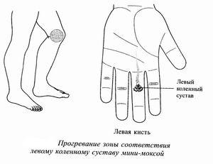 Болезненные точки на коленном суставе шёлкает сустав в коленке